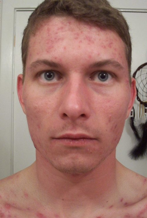 l_11_weeks_accutane_front_face