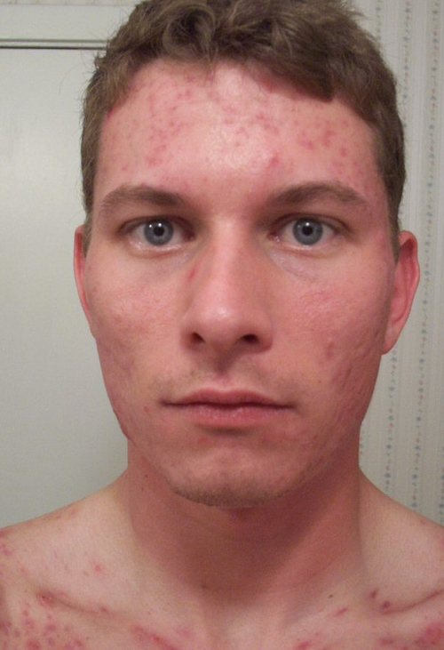 m_12_weeks_accutane_front_face