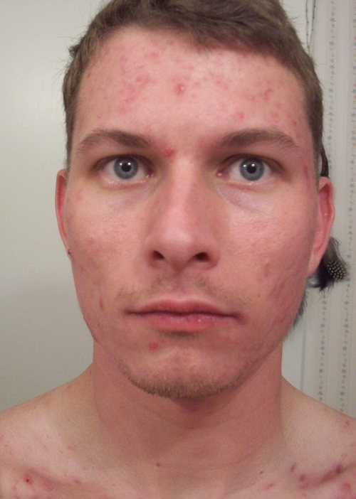 o_15_weeks_accutane_front_face