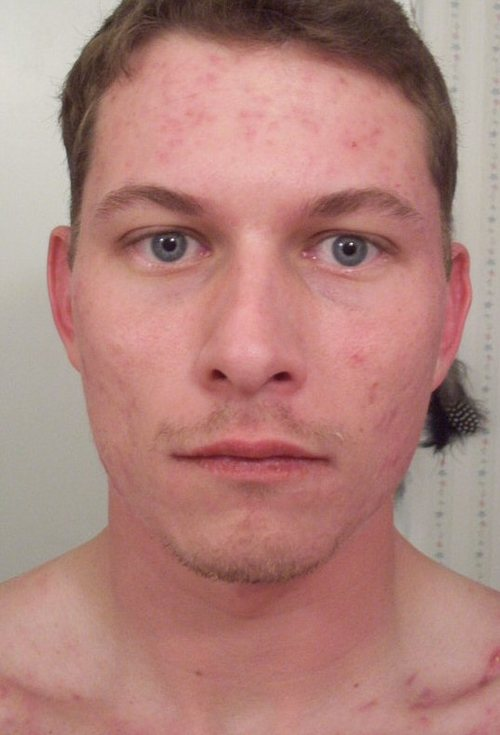 q_17_weeks_accutane_front_face