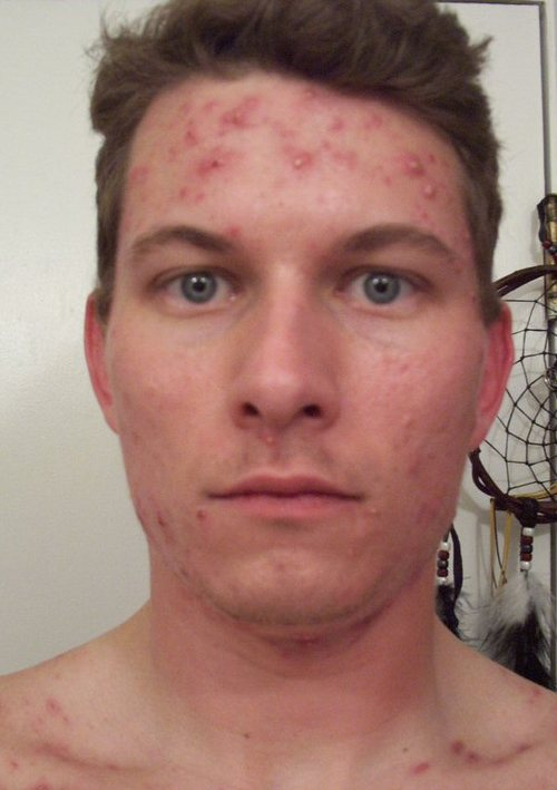 g_6_weeks_accutane_front_face