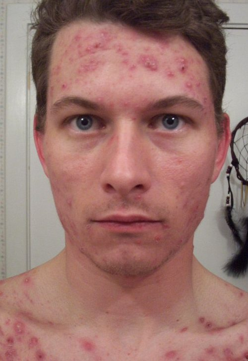 accutane to treat acne
