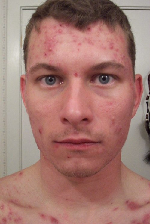 j_9_weeks_accutane_front_face