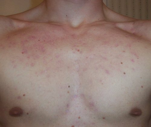 W_postaccutane_two_months_chest