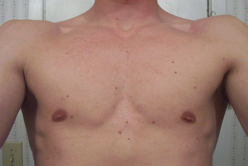 Y_nine_months_after_chest