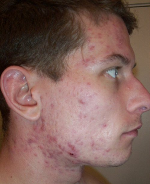 L_11_accutane_11_week_right_face