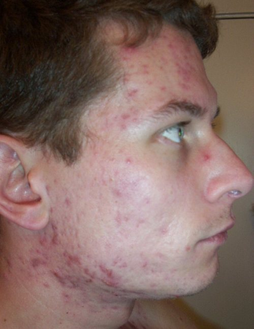 hair loss from accutane treatments