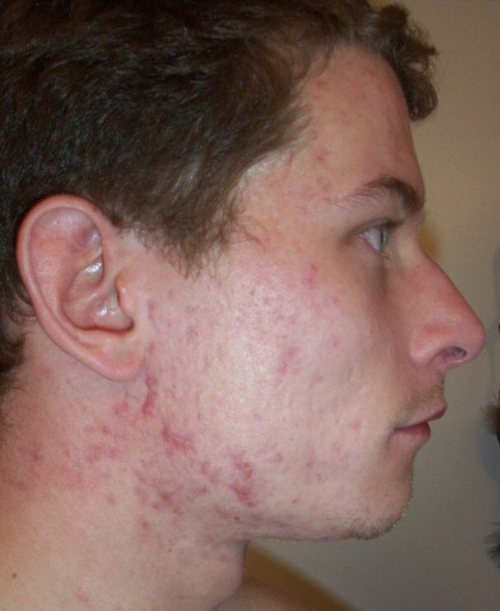S_19_accutane_last_week_right_face