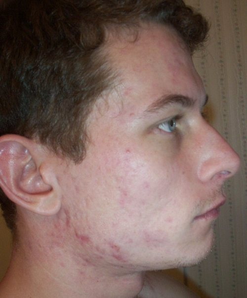 weed accutane both