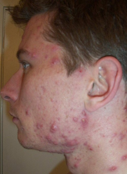Weekly Accutane Picture Log-- Left Face: D_amnesteem_3_week