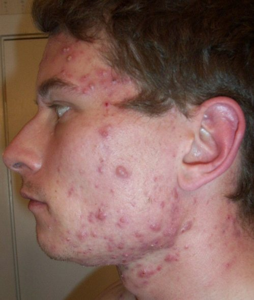 Accutane acne treatment cost before and after
