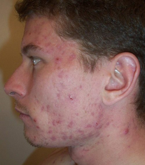 N_accutane_13_week_left_face