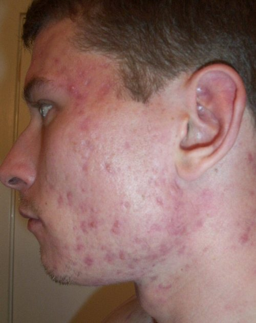 does accutane cause fatigue