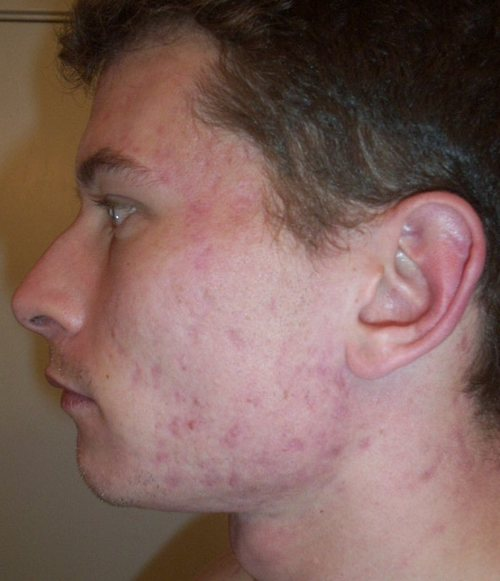 Where to purchase accutane in Detroit