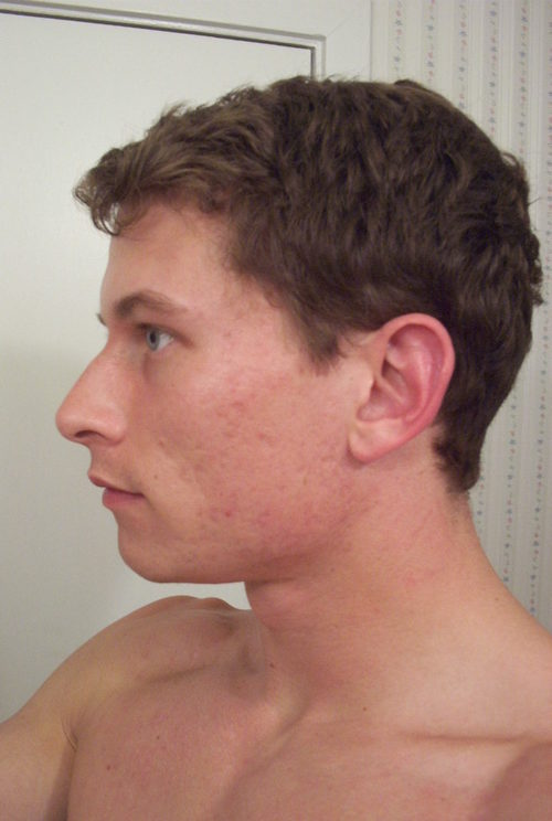 Weekly Accutane Picture Log Left Face Y Nine Months After Left Face 1