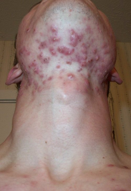Accutane Cheap Without Prescription