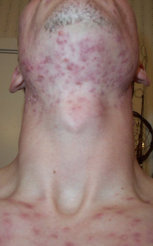 N_accutane_13_week_front_neck