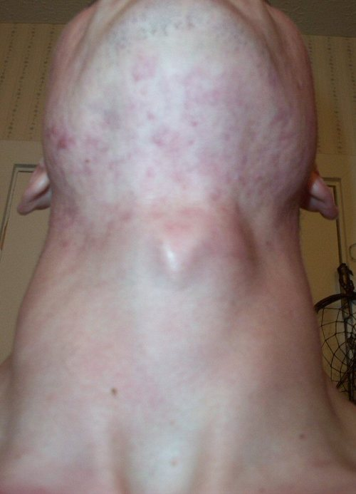 T_accutane_20_week_front_neck