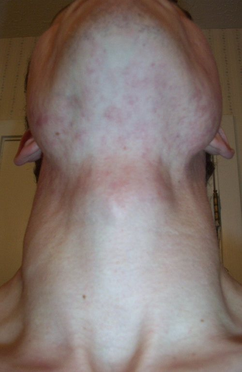 W_postaccutane_two_months_after
