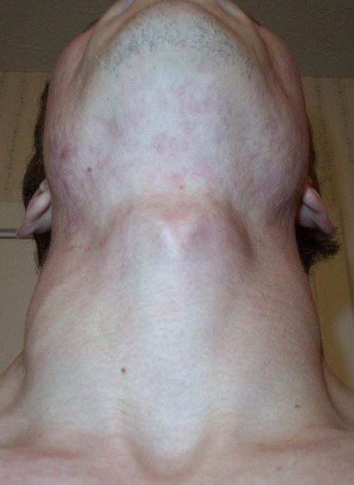 X_postaccutane_four_months_after_front_n